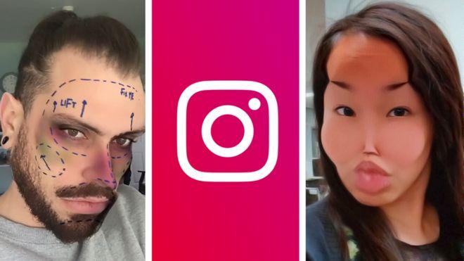 Instagram debekatutako kirurgia plastikoko iragazkia