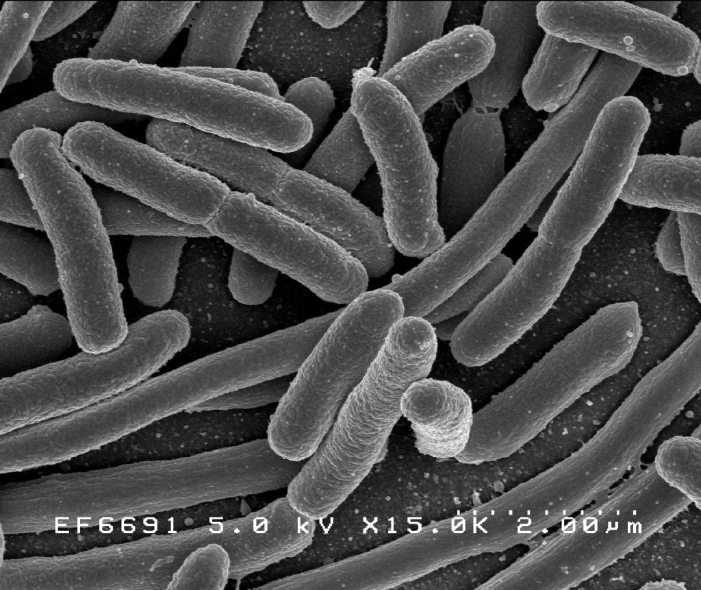 New Delhi bakterioa Poloniako ospitale batean.  Antibiotikoekiko erresistentea da, saila itxita zegoen