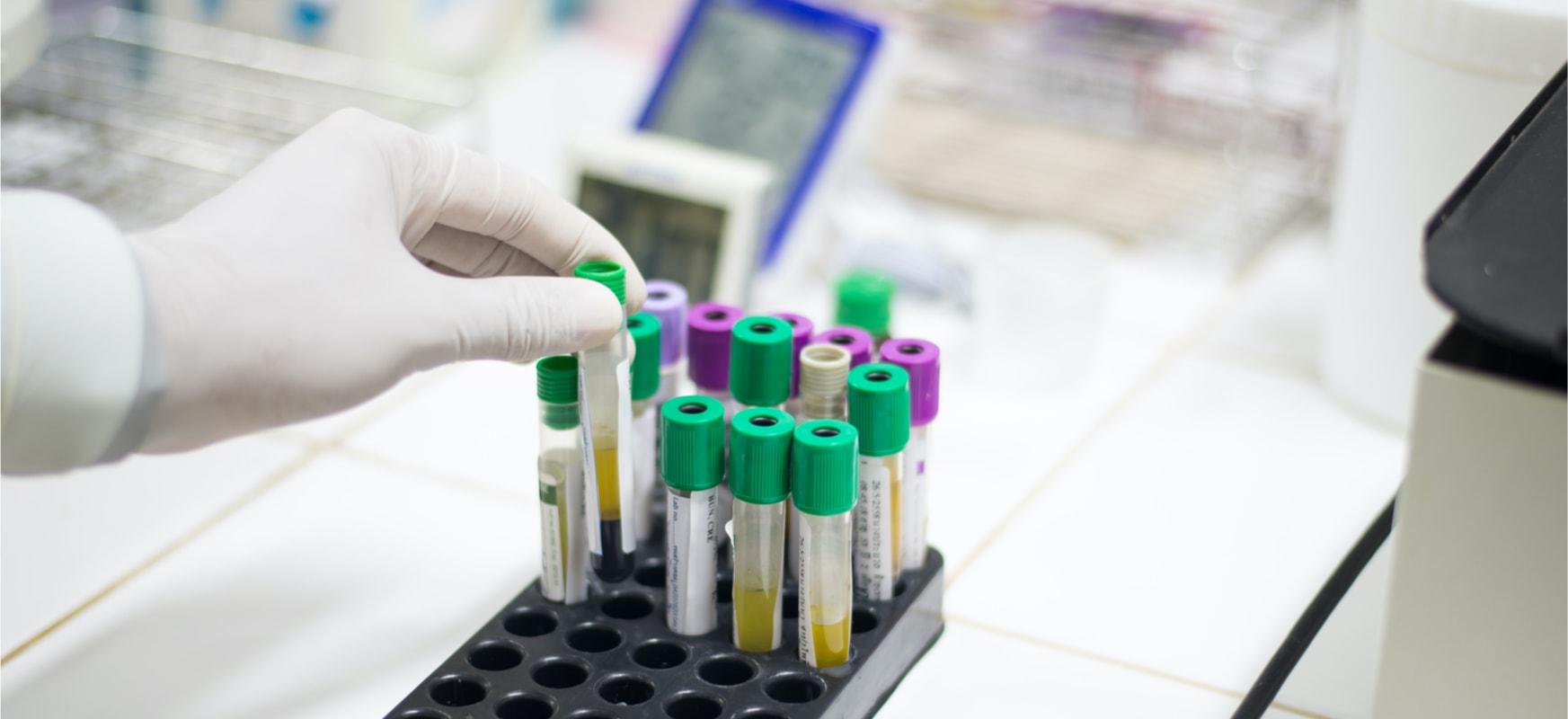 Poloniako lehen koronavirusen biktima.  Medikuek diote kutsatu gehiago daudela